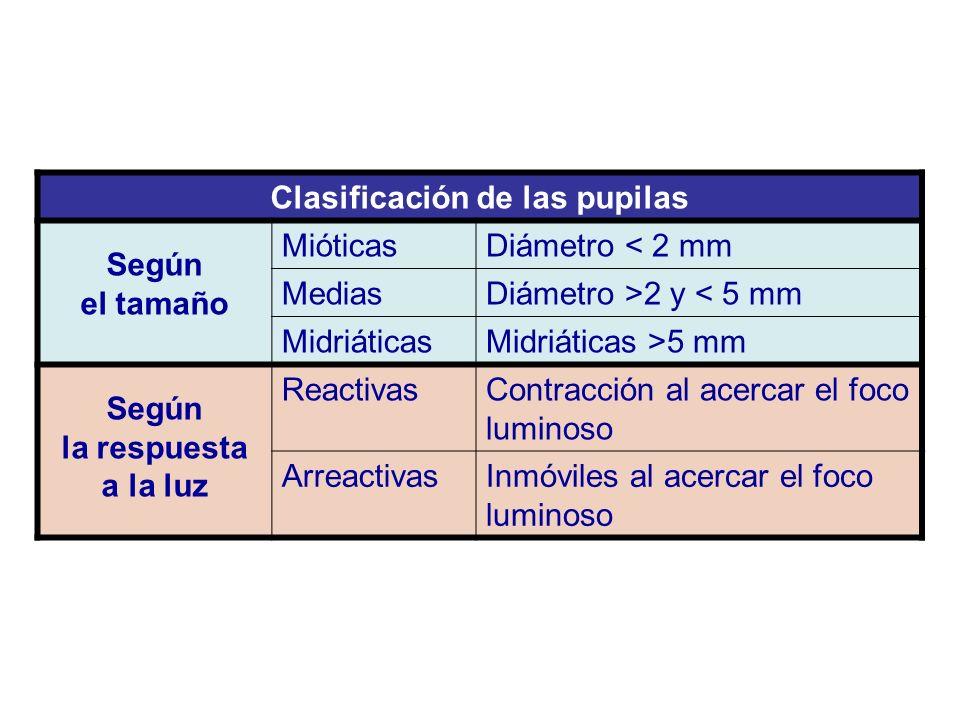 Clasificación de las pupilas