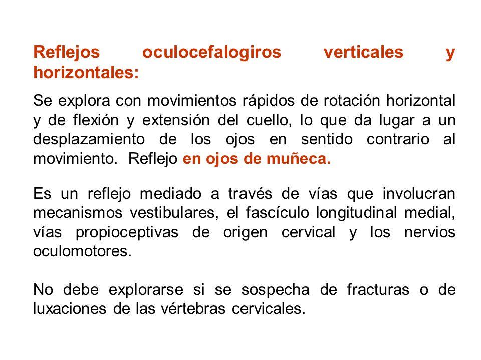 Reflejos oculocefalogiros verticales y horizontales:
