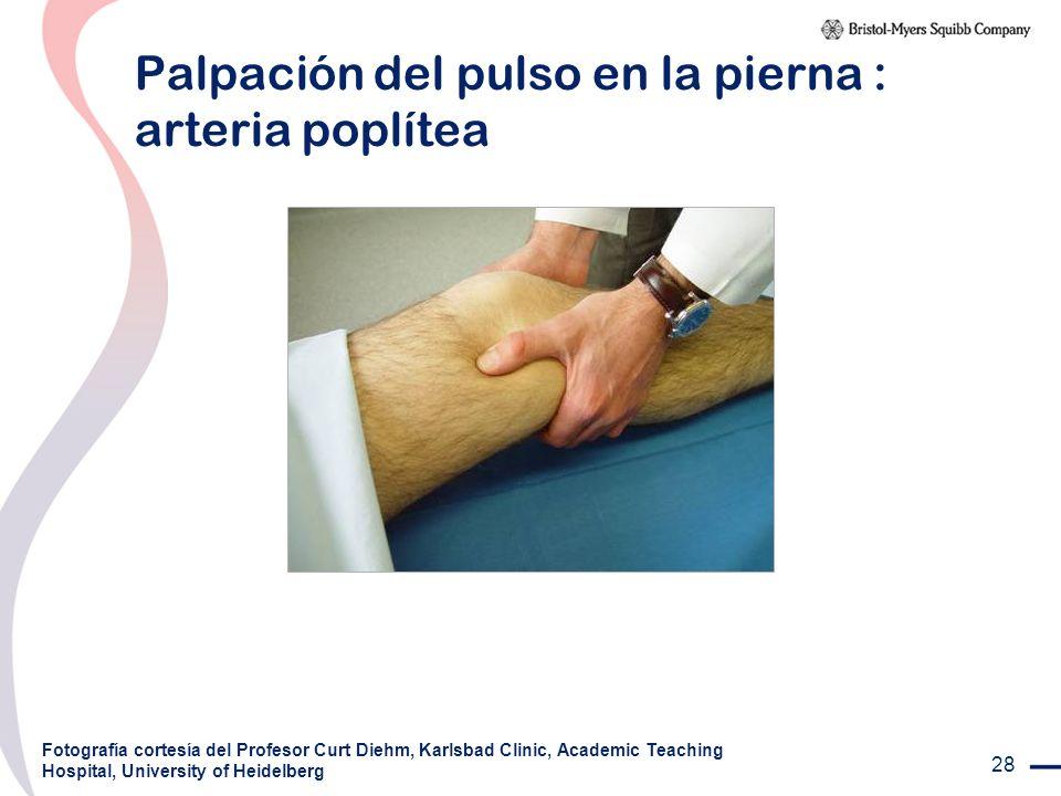 Palpación del pulso en la pierna : arteria poplítea