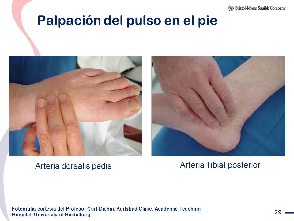 Palpación del pulso en el pie