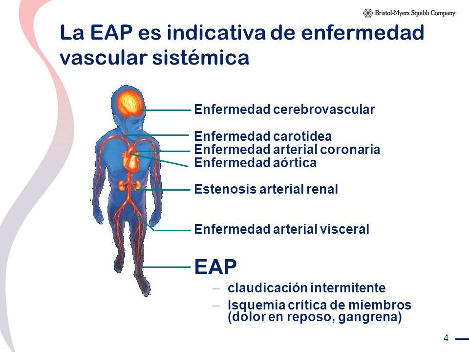 La EAP es indicativa de enfermedad vascular sistémica