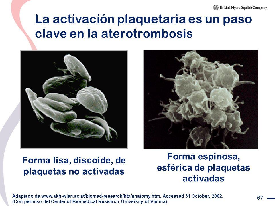 La activación plaquetaria es un paso clave en la aterotrombosis