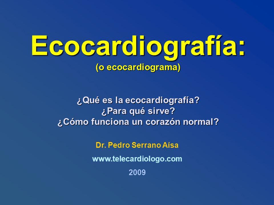 Ecocardiografía: (o ecocardiograma) ¿Qué es la ecocardiografía