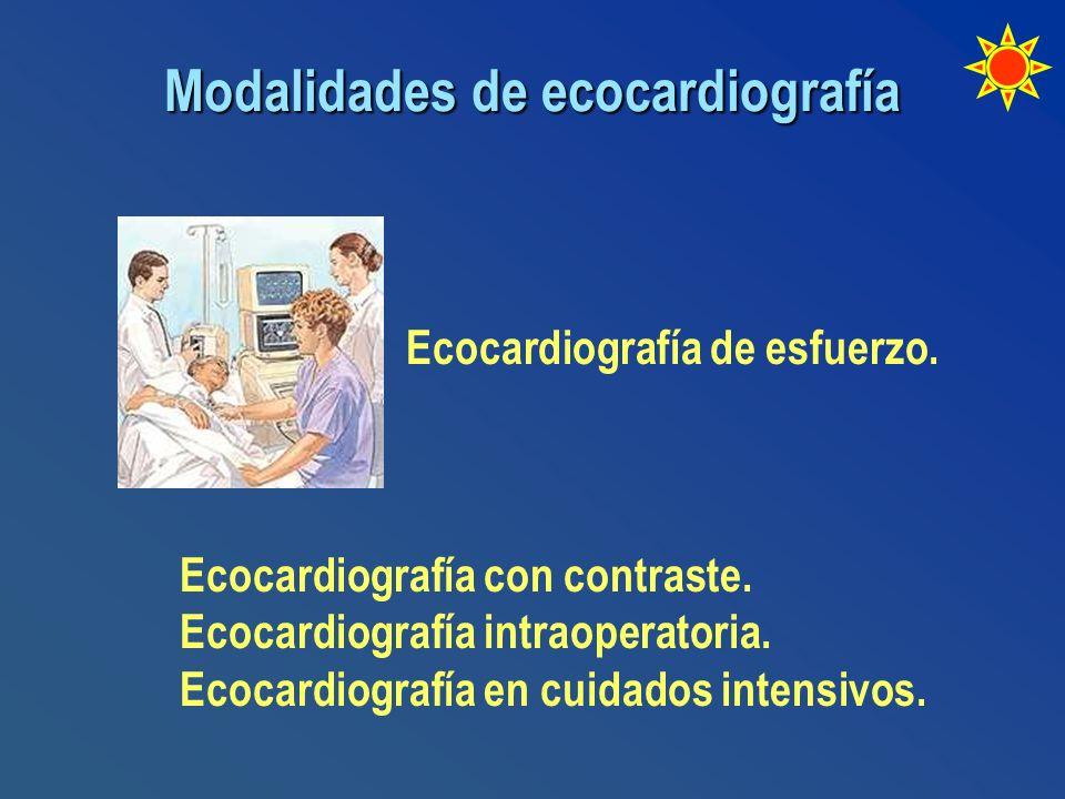 Modalidades de ecocardiografía