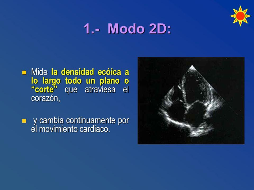 1.- Modo 2D: Mide la densidad ecóica a lo largo todo un plano o corte que atraviesa el corazón,