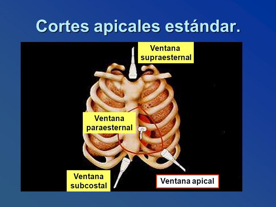Cortes apicales estándar.