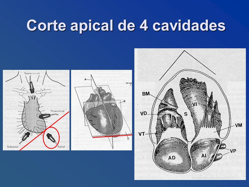 Corte apical de 4 cavidades