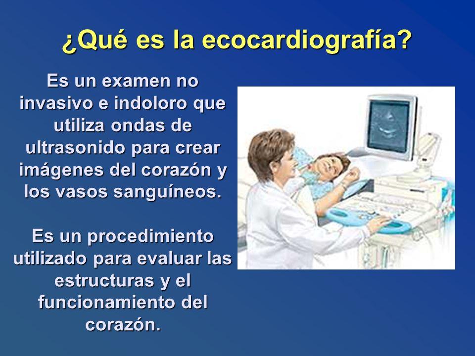 ¿Qué es la ecocardiografía