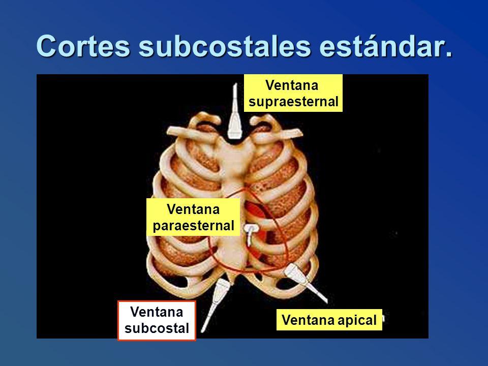 Cortes subcostales estándar.