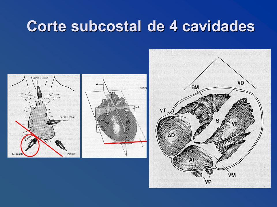 Corte subcostal de 4 cavidades