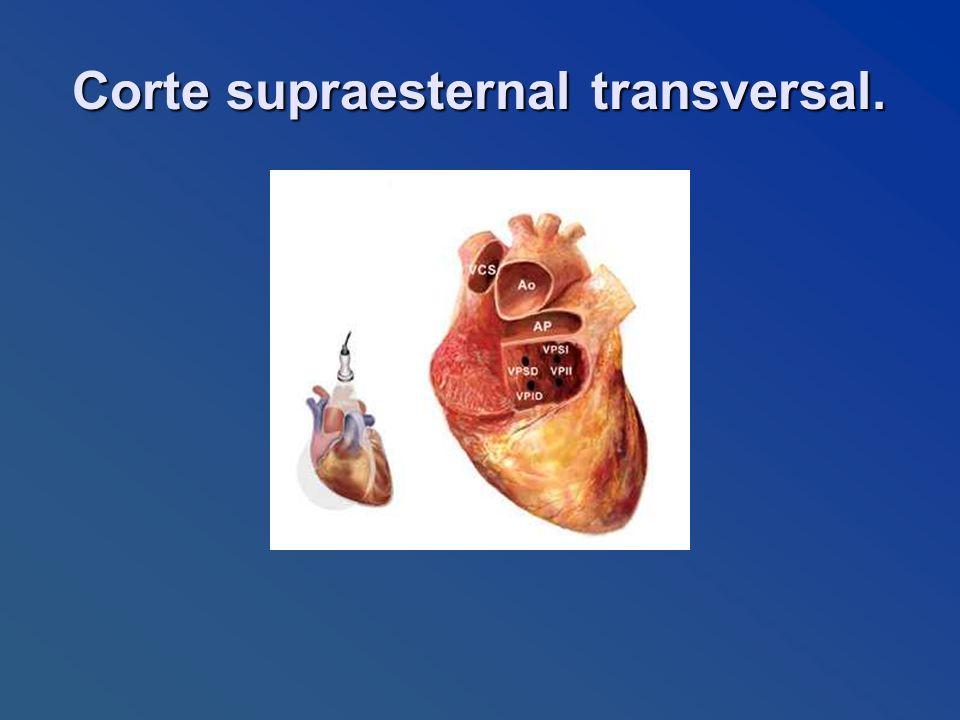 Corte supraesternal transversal.