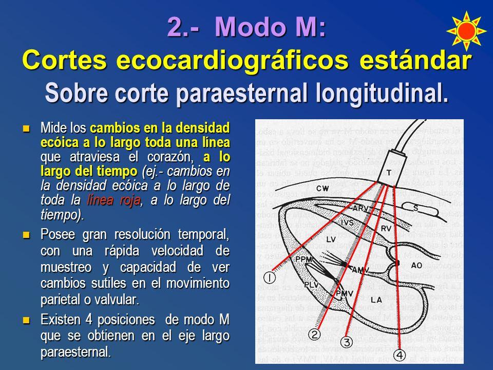 2.- Modo M: Cortes ecocardiográficos estándar Sobre corte paraesternal longitudinal.