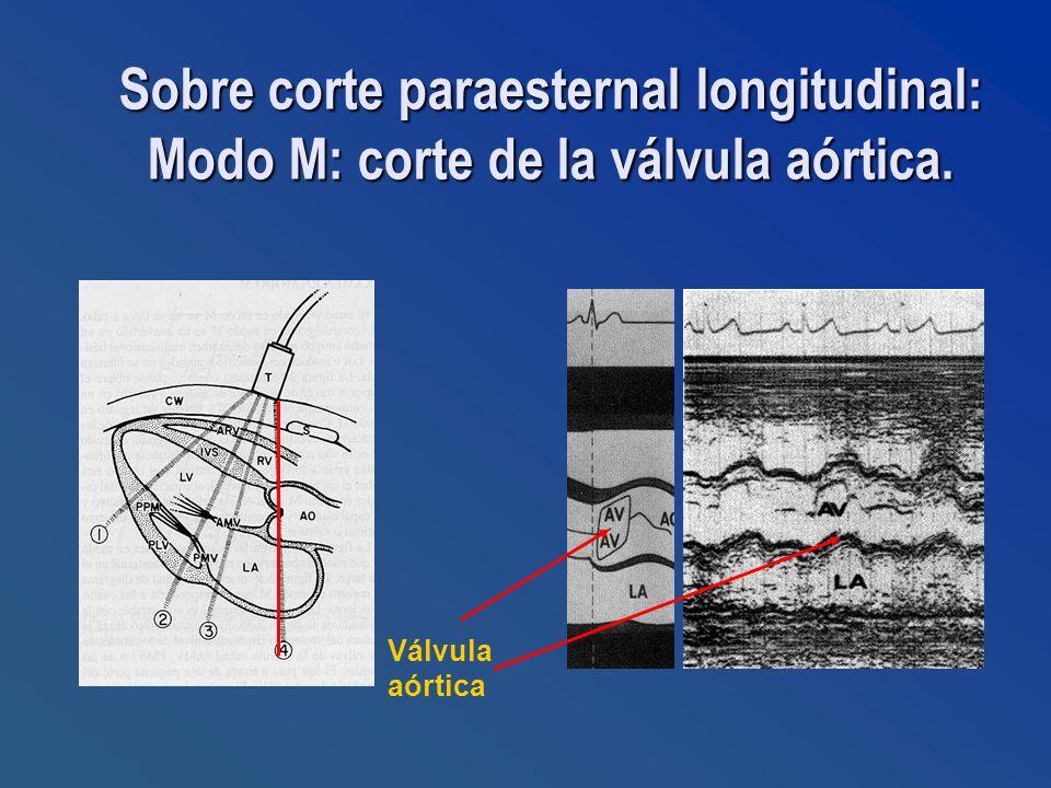 Sobre corte paraesternal longitudinal: Modo M: corte de la válvula aórtica.