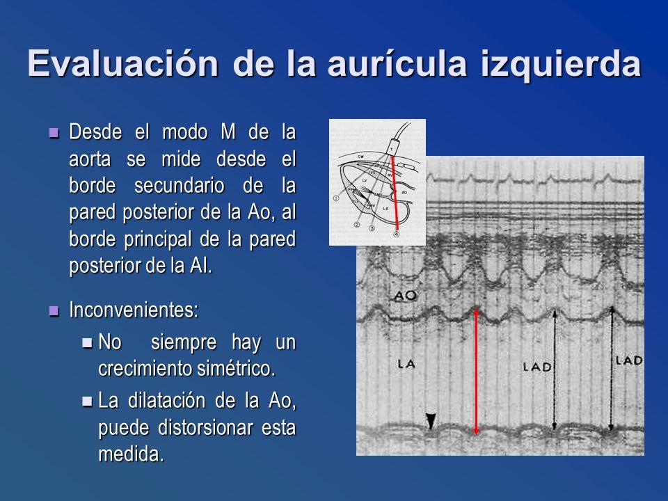 Evaluación de la aurícula izquierda