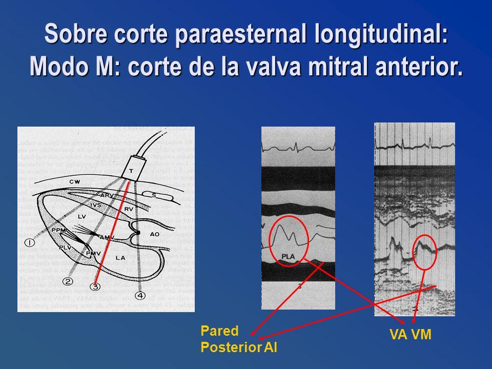 Sobre corte paraesternal longitudinal: Modo M: corte de la valva mitral anterior.