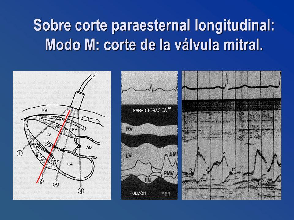 Sobre corte paraesternal longitudinal: Modo M: corte de la válvula mitral.