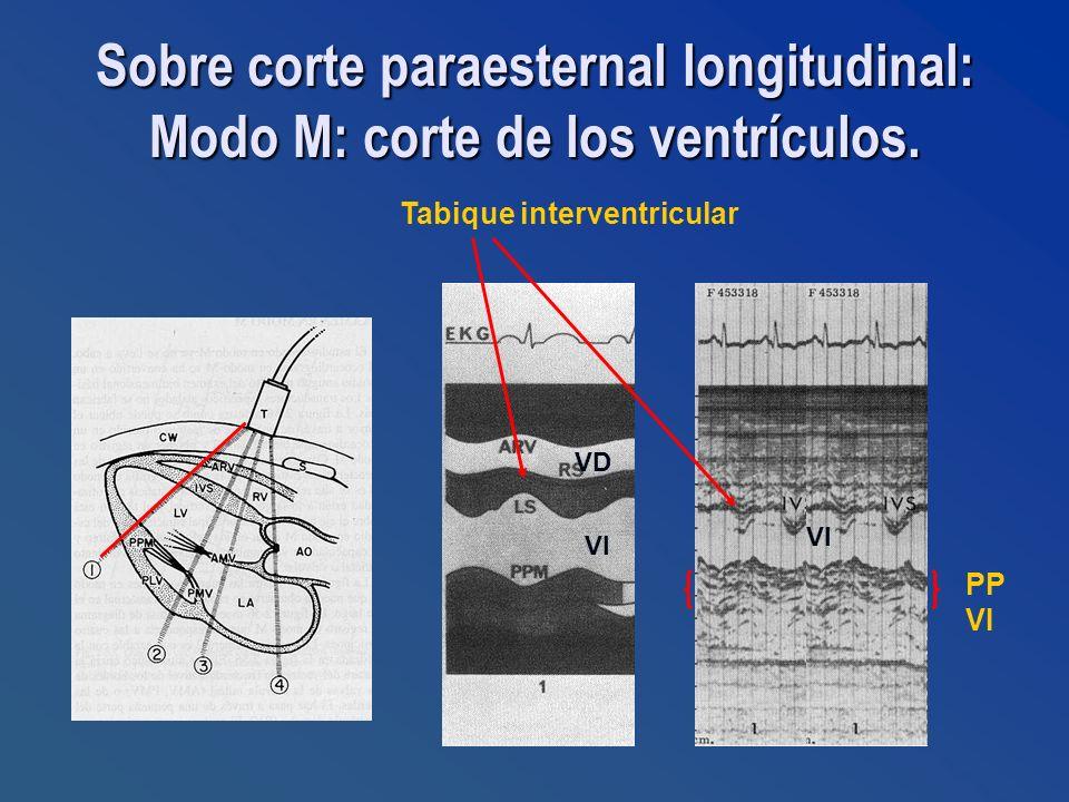 Sobre corte paraesternal longitudinal: Modo M: corte de los ventrículos.
