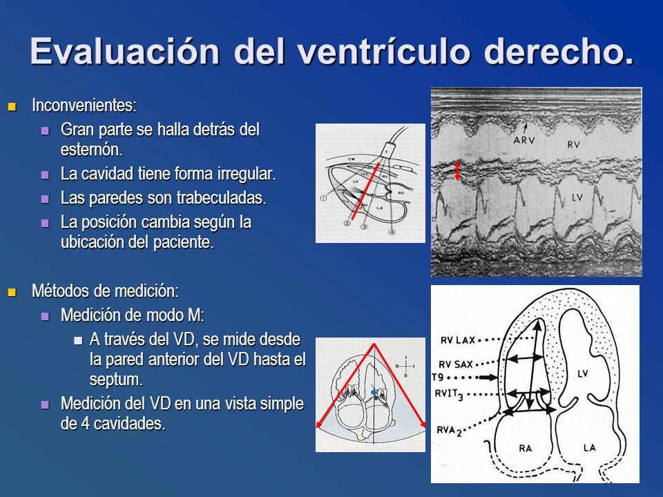 Evaluación del ventrículo derecho.