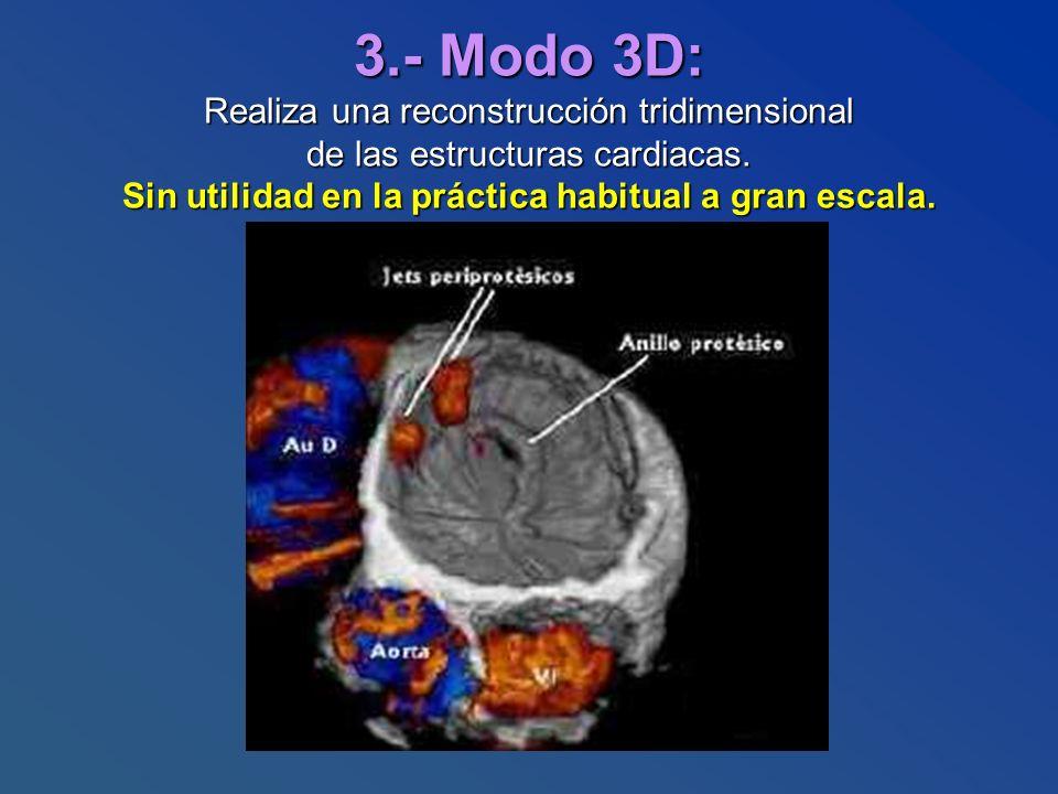 3.- Modo 3D: Realiza una reconstrucción tridimensional de las estructuras cardiacas.