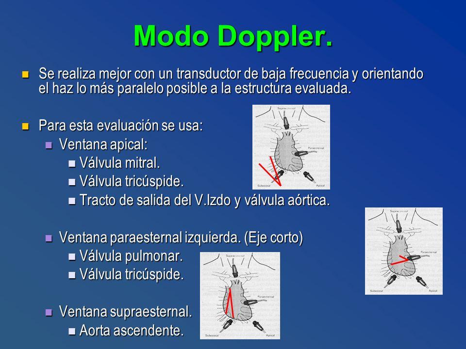 Modo Doppler. Se realiza mejor con un transductor de baja frecuencia y orientando el haz lo más paralelo posible a la estructura evaluada.