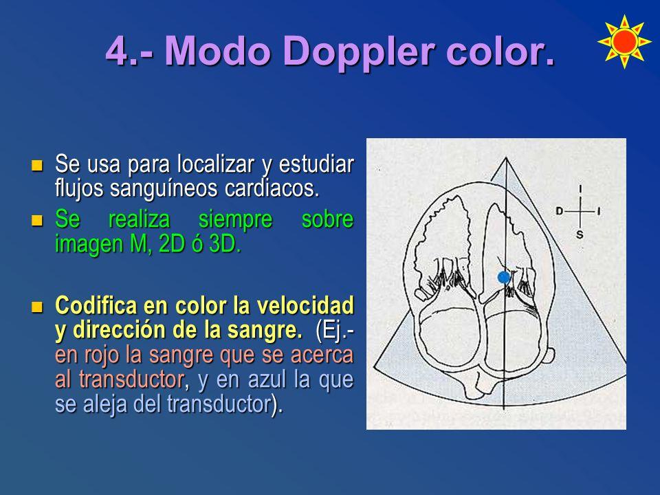 4.- Modo Doppler color. Se usa para localizar y estudiar flujos sanguíneos cardiacos. Se realiza siempre sobre imagen M, 2D ó 3D.