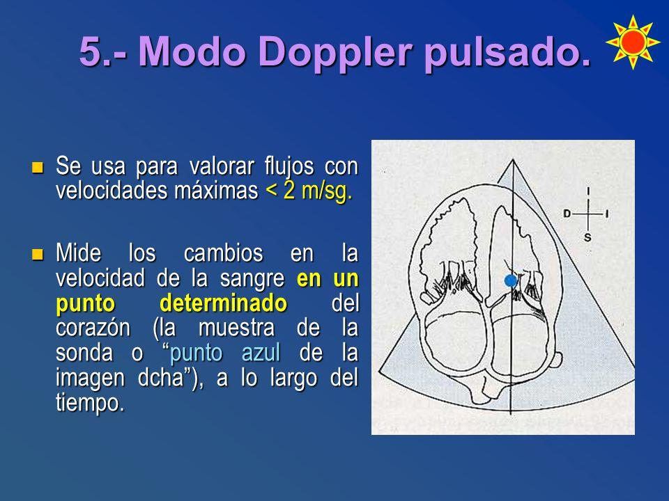 5.- Modo Doppler pulsado. Se usa para valorar flujos con velocidades máximas < 2 m/sg.