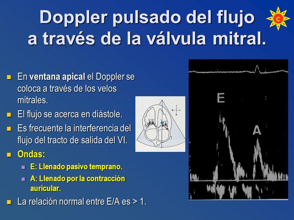 Doppler pulsado del flujo a través de la válvula mitral.