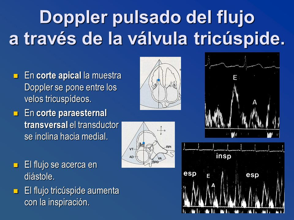 Doppler pulsado del flujo a través de la válvula tricúspide.