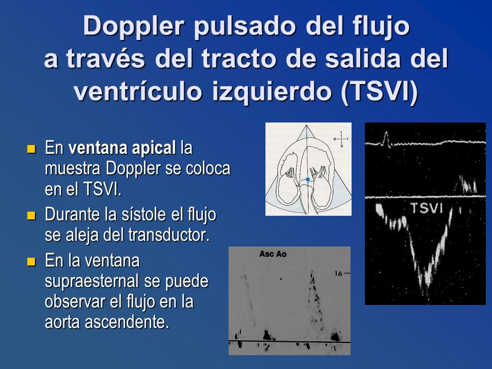 Doppler pulsado del flujo a través del tracto de salida del ventrículo izquierdo (TSVI)