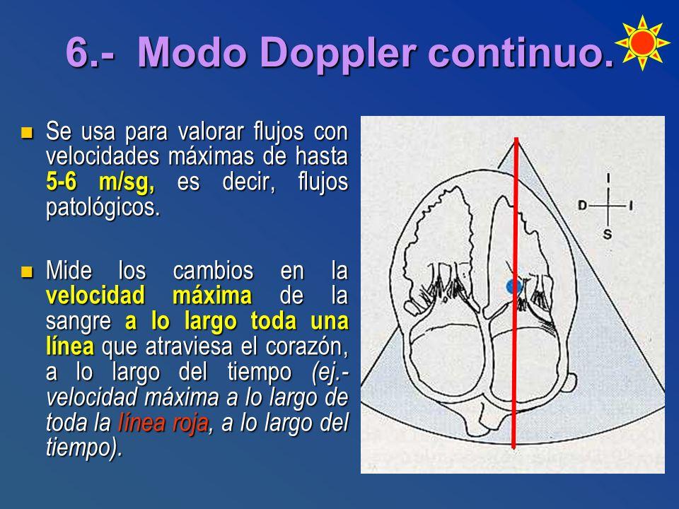 6.- Modo Doppler continuo.