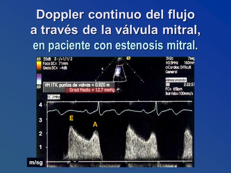 Doppler continuo del flujo a través de la válvula mitral, en paciente con estenosis mitral.