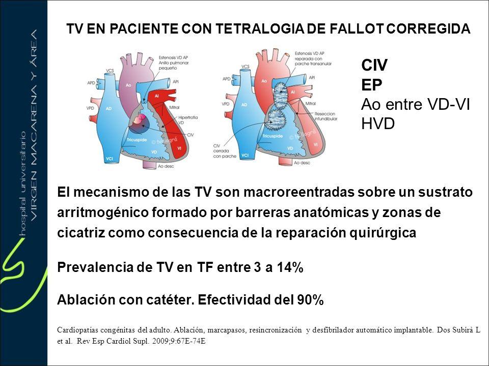 TV EN PACIENTE CON TETRALOGIA DE FALLOT CORREGIDA