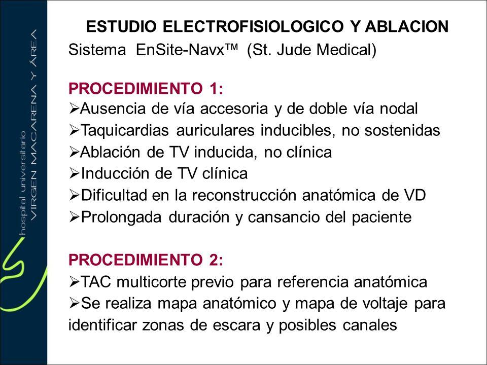 ESTUDIO ELECTROFISIOLOGICO Y ABLACION