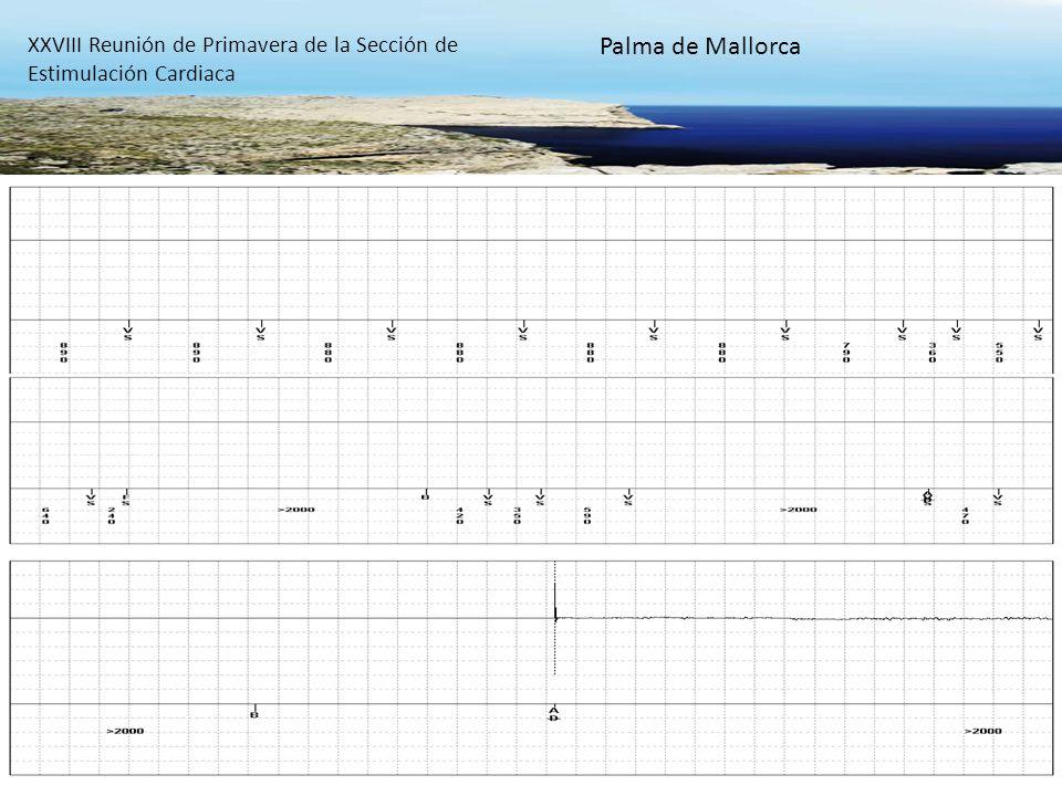 XXVIII Reunión de Primavera de la Sección de Estimulación Cardiaca