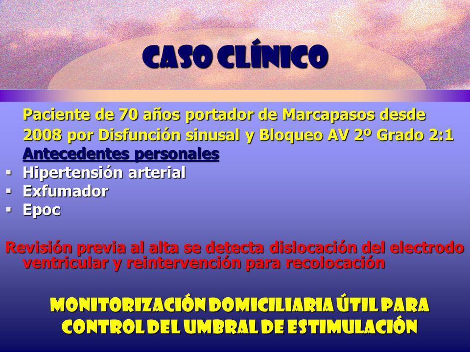 Caso clínico Paciente de 70 años portador de Marcapasos desde
