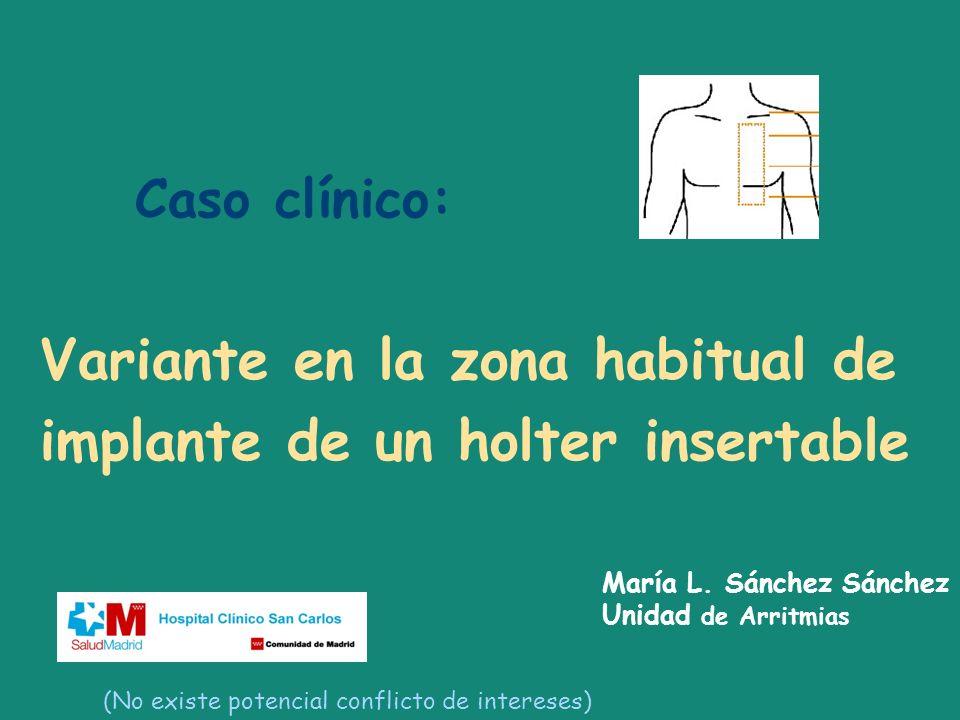 Variante en la zona habitual de implante de un holter insertable