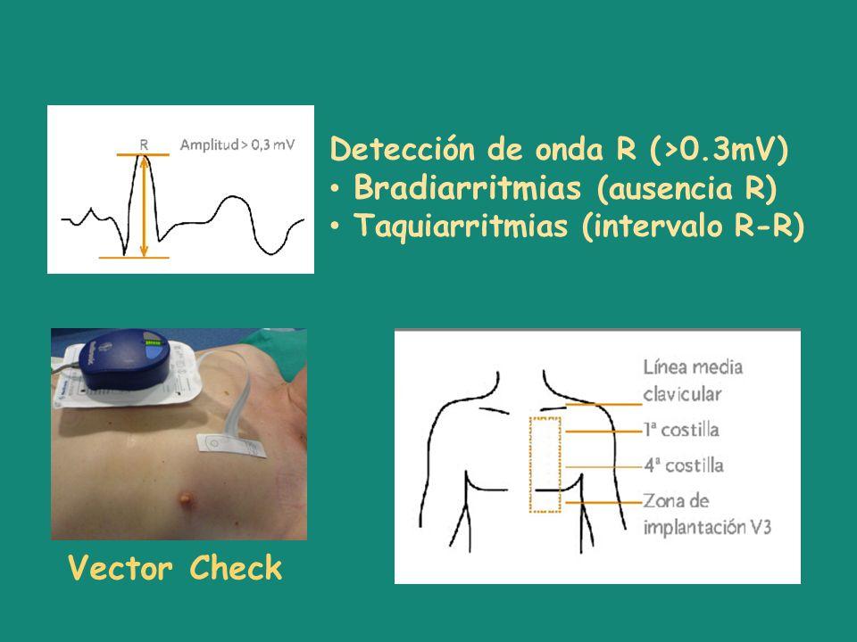 Vector Check Detección de onda R (>0.3mV)
