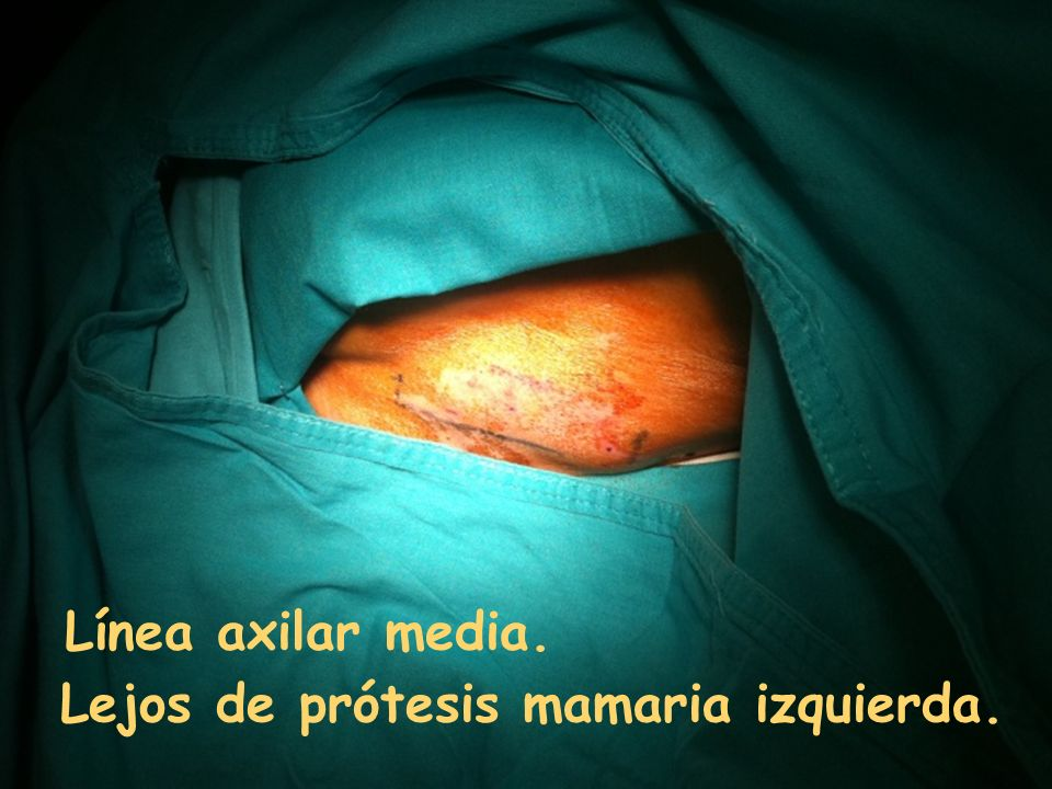 Línea axilar media. Lejos de prótesis mamaria izquierda.