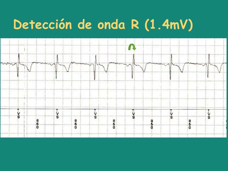Detección de onda R (1.4mV)