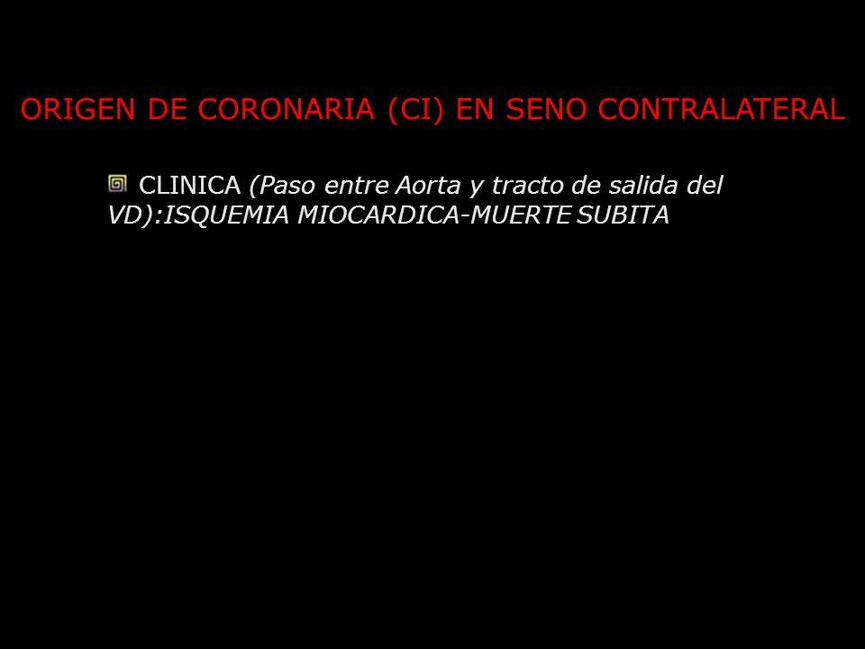 ORIGEN DE CORONARIA (CI) EN SENO CONTRALATERAL