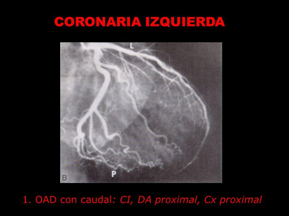 CORONARIA IZQUIERDA 1. OAD con caudal: CI, DA proximal, Cx proximal