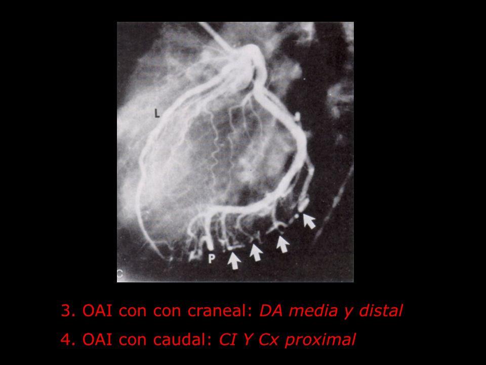 3. OAI con con craneal: DA media y distal