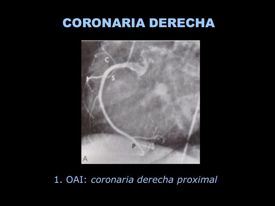 CORONARIA DERECHA 1. OAI: coronaria derecha proximal