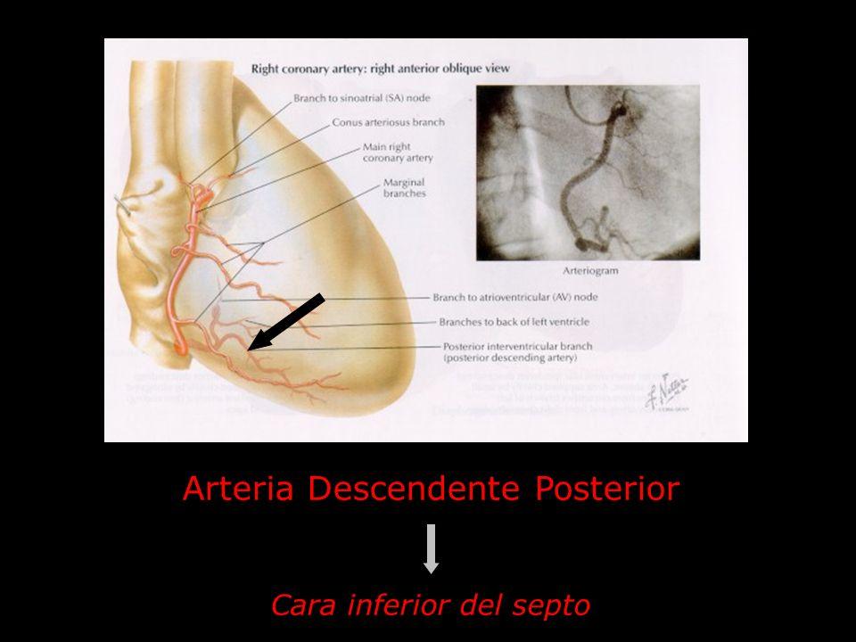 Arteria Descendente Posterior