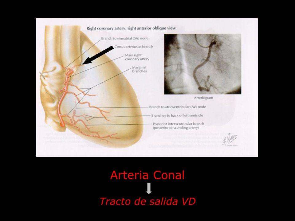 Arteria Conal Tracto de salida VD