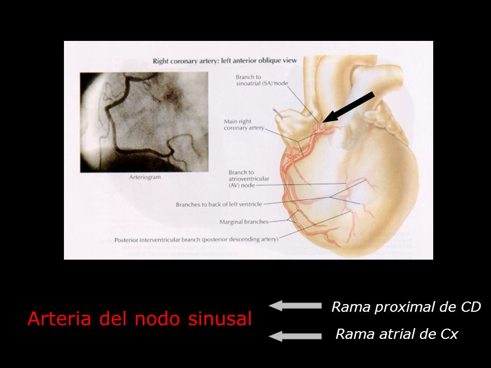 Arteria del nodo sinusal