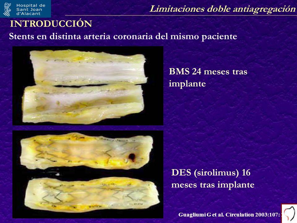 Stents en distinta arteria coronaria del mismo paciente