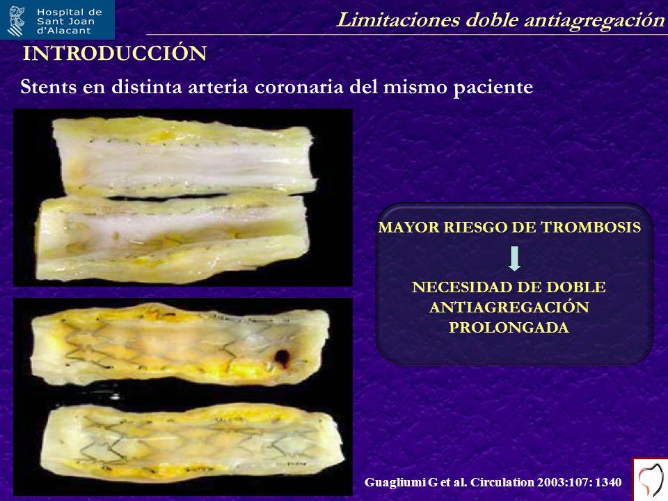 MAYOR RIESGO DE TROMBOSIS NECESIDAD DE DOBLE ANTIAGREGACIÓN PROLONGADA