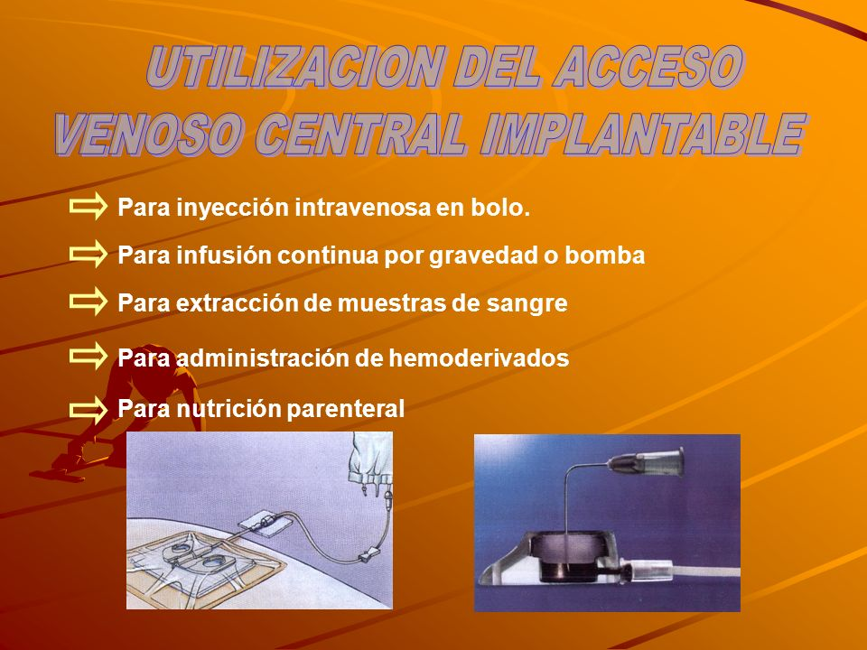 UTILIZACION DEL ACCESO VENOSO CENTRAL IMPLANTABLE