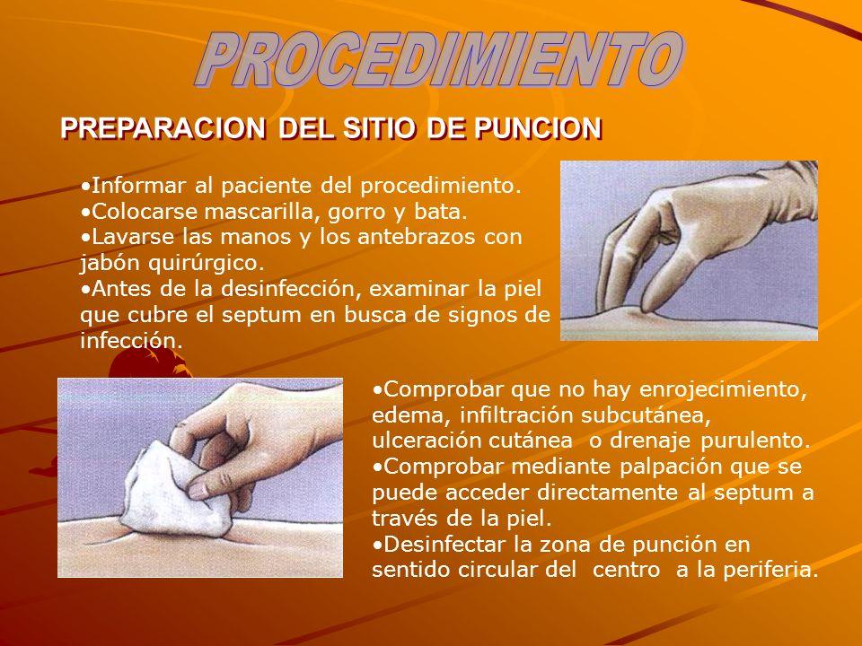 PROCEDIMIENTO PREPARACION DEL SITIO DE PUNCION
